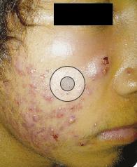 De acuerdo con un estudio realizado por Nagpal y colaboradores, los pacientes con acné tienen mayor riesgo de desarrollar síndrome metabólico.
