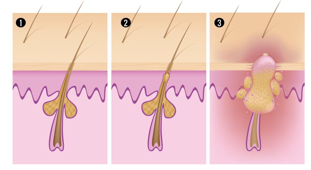 1.Folículo piloso sano, con secreción normal de sebo y poro abierto. 2. Exceso de sebo que obstruye el poro. 3. Proliferación bacteriana (P. acnes) e inflamación.