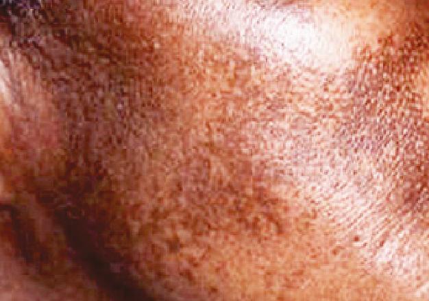Paciente tratada en forma crónica con HQ, por lo que ha desarrollado un cuadro clínico que, en los mismos términos  corresponde a ocronosis.