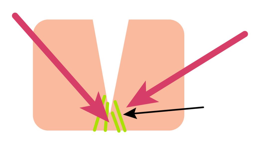 La subincisión se dirige a la parte baja de la cicatriz intentando liberar la fibrosis, creando un coágulo con liberación de sustancias que provocan la generación de colágeno nuevo.