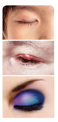 Procesos infecciosos y el maquillaje, entre otros, a lo largo del tiempo pueden afectar la estética de esta zona.