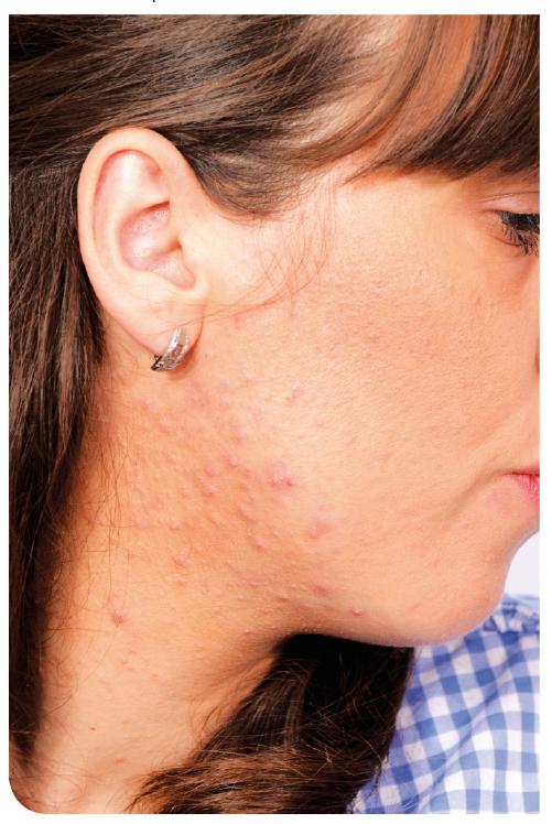 Antes de iniciar con el tratamiento se deben hacer estudios que descarten o confirmen otra enfermedad de fondo.