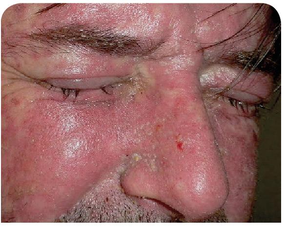 Eritema facial y conjuntivitis en un paciente con SJS.