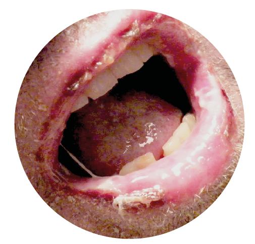 Afectación de la mucosa oral en SJS.