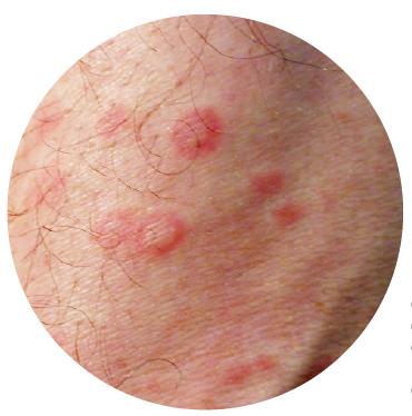 Lesiones en blanco de tiro tipo eritema polimorfo en SJS.