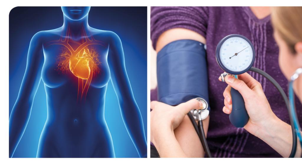 La vigilancia cardiovascular, de acuerdo con este estudio, es recomendable en pacientes con rosácea.