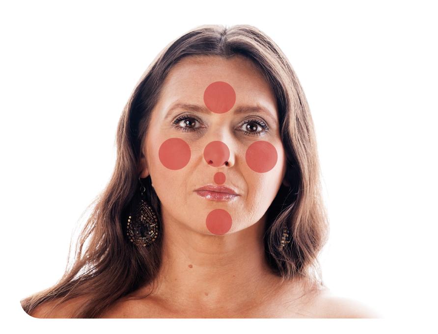 La rosácea afecta fundamentalmente la zona centrofacial (nariz, mejillas, mentón y frente).
