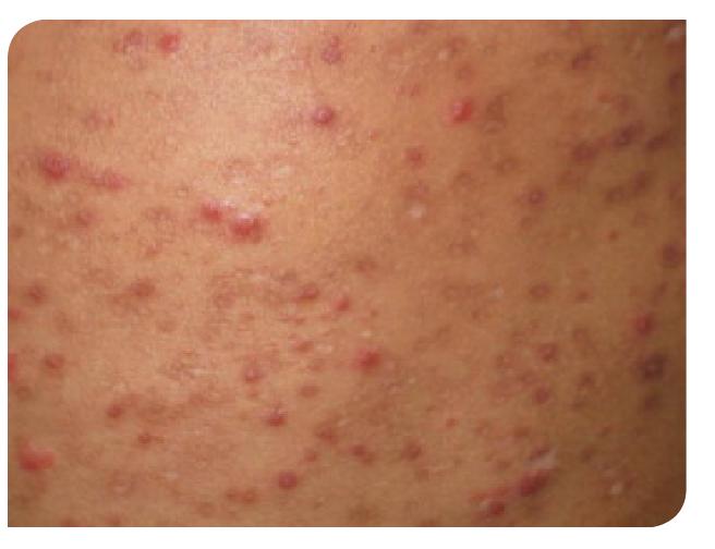 Tubercúlides papulonecróticas.