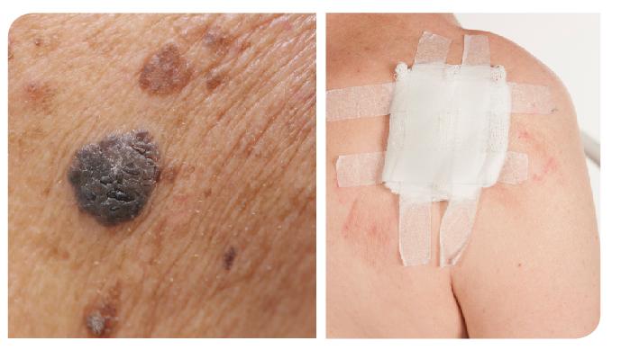 La posibilidad del desarrollo de un nuevo melanoma obliga a mantener una conducta expectante.