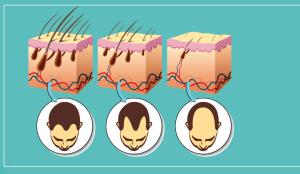 Dependiendo de las características de la caída del cabello, se establecerá el procedimiento.