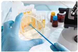 La interpretación de laboratorio del resultado debe tener en cuenta todos los datos clínicos, el aspecto clínico y el contexto del paciente, así como los datos micológicos, el estudio directo y el cultivo de la muestra.